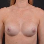 Breast Augmentation Silicone Gel - Case #61 After