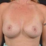 Breast Augmentation Silicone Gel - Case #60 After