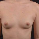 Breast Augmentation Silicone Gel - Case #59 Before