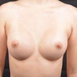 Breast Augmentation Silicone Gel - Case #59 After