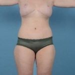 Tummy Tuck, Body Lift, Thigh Lift and Breast Revision - Case #2 After