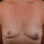 Breast Augmentation Silicone Gel - Case #58 Before
