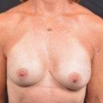 Breast Augmentation Silicone Gel - Case #58 After