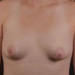 Breast Augmentation Silicone Gel - Case #57 Before