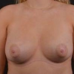 Breast Augmentation Silicone Gel - Case #57 After