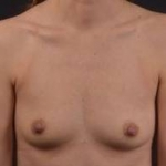 Breast Augmentation Silicone Gel - Case #56 Before