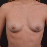 Breast Augmentation Silicone Gel - Case #55 Before