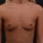 Breast Augmentation Silicone Gel - Case #54 Before