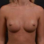 Breast Augmentation Silicone Gel - Case #54 After