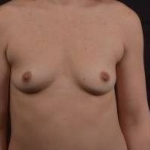 Breast Augmentation Silicone Gel - Case #53 Before
