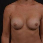 Breast Augmentation Silicone Gel - Case #53 After