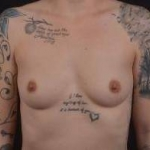 Breast Augmentation Silicone Gel - Case #52 Before