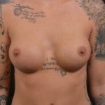 Breast Augmentation Silicone Gel - Case #52 After