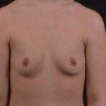 Breast Augmentation Silicone Gel - Case #51 Before