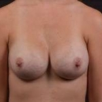 Breast Augmentation Silicone Gel - Case #51 After