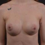 Breast Augmentation Silicone Gel - Case #50 After