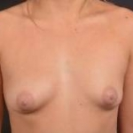 Breast Augmentation Silicone Gel - Case #49 Before