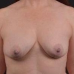 Breast Augmentation Silicone Gel - Case #48 Before