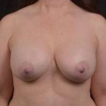 Breast Augmentation Silicone Gel - Case #48 After