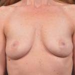 Breast Augmentation Silicone Gel - Case #46 Before