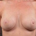 Breast Augmentation Silicone Gel - Case #46 After