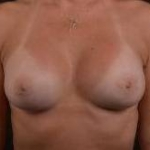 Breast Augmentation Silicone Gel - Case #44 After