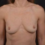 Breast Augmentation Silicone Gel - Case #42 Before