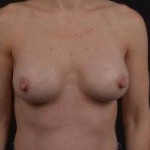 Breast Augmentation Silicone Gel - Case #42 After