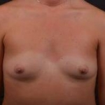 Breast Augmentation - Case #41 Before