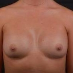 Breast Augmentation - Case #41 After