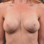 Case 39 Before & After Breast Augmentation | Nashville, TN | Maxwell Aesthetics After