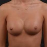 Breast Augmentation Silicone Gel - Case #21 After