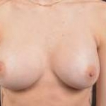Breast Augmentation Silicone Gel - Case #20 After