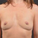 Breast Augmentation Silicone Gel - Case #19 Before