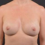 Breast Augmentation Silicone Gel - Case #19 After