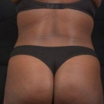 Liposuction 360 and Brazilian Butt Lift - Case #8 After