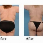 Liposuction and Brazilian Butt Lift - Case #7 After