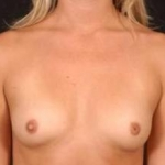 Breast Augmentation Silicone Gel - Case #1 Before