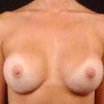 Breast Augmentation Silicone Gel - Case #1 After