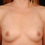 Breast Augmentation Silicone Gel - Case #2 Before