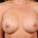 Breast Augmentation Silicone Gel - Case #2 After