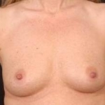 Breast Augmentation Silicone Gel - Case #3 Before