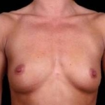 Breast Augmentation Silicone Gel - Case #4 Before