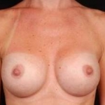 Breast Augmentation Silicone Gel - Case #5 After