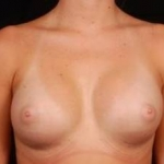 Breast Augmentation Silicone Gel - Case #6 After