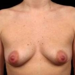 Breast Augmentation Silicone Gel - Case #8 Before