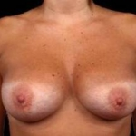 Breast Augmentation Silicone Gel - Case #8 After
