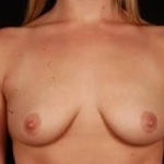 Breast Augmentation Silicone Gel - Case #9 Before