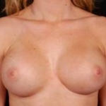 Breast Augmentation Silicone Gel - Case #10 After