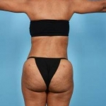 Brazillian Butt Lift and Tummy Tuck - Case #1 After